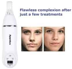 Christmas Gift Ideas For Wife - Microdermabrasion Kit 1