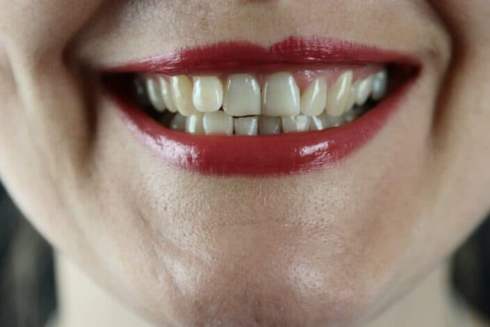 Color one of your front teeth black.jpg